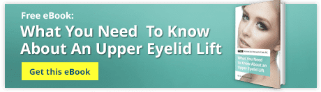 What You Need to Know About an Upper Eyelid Lift 2