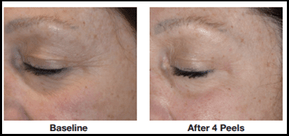 Chemical Peels Advanced Specialty Care